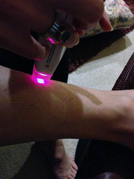 Image of a cold laser being used on a leg muscle