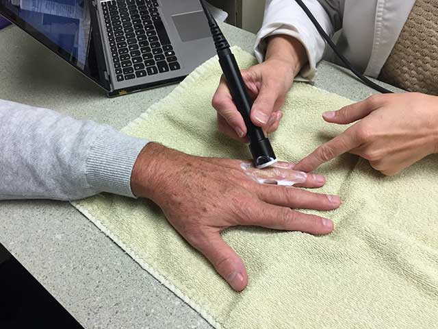 image of ultasound treatment on a finger